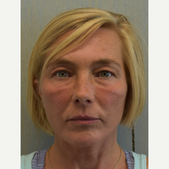 45-54 year old woman treated with Facelift after 3428261