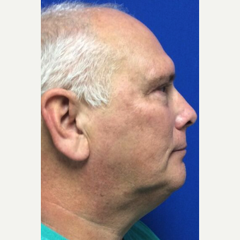 Microlaser Peel for this 66 Year Old Man