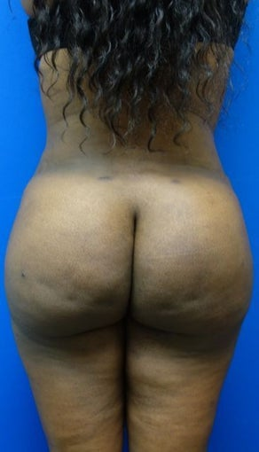 Brazilian Butt Lift  after 1144544