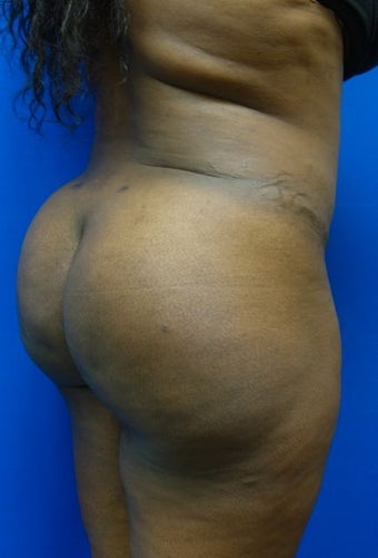 Brazilian Butt Lift  1144544