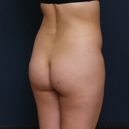 25-34 year old woman treated with Fat Transfer before 3343965