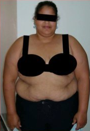 25 Year Old Female 124 pound weight loss before 1088774