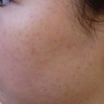 Acne and acne scar prevention after 3703833