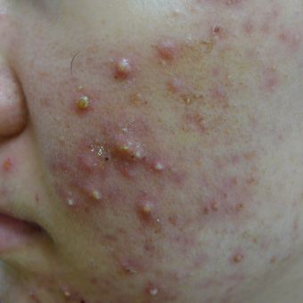 Acne and acne scar prevention before 3703833
