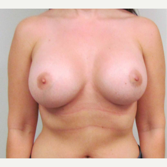 Breast Implants for this 30 Year Old Woman after 3005596
