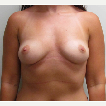Breast Implants for this 30 Year Old Woman before 3005596
