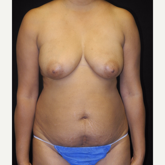 45-54 year old woman with DIEP flap breast reconstruction and implants before 3742720