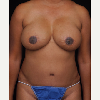 45-54 year old woman with DIEP flap breast reconstruction and implants after 3742720