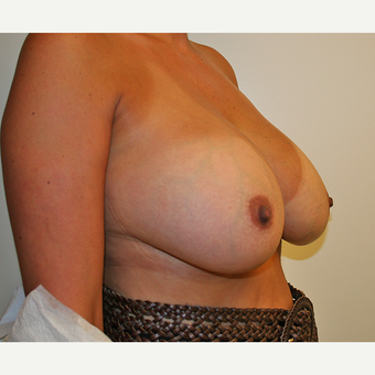 45-54 year old woman treated with Breast Reduction before 3544196