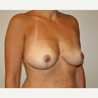 45-54 year old woman treated with Breast Reduction after 3544196