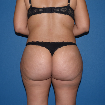 Liposuction after 3806844