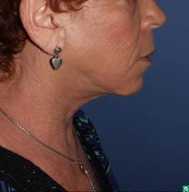 Face/ neck lift and laser resurfacing, 62 year old