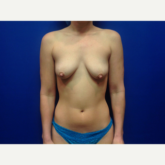 25-34 year old woman treated with Breast Augmentation before 3019010