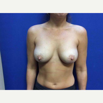 25-34 year old woman treated with Breast Augmentation after 3019010