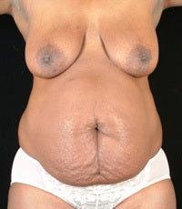 Tummy Tuck, Hip Liposuction before 1058284
