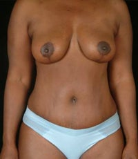 Tummy Tuck, Hip Liposuction after 1058284