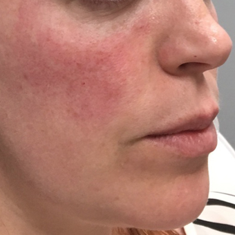 35-44 year old woman treated with Voluma after 3664759