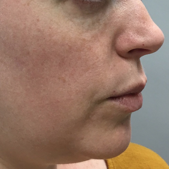 35-44 year old woman treated with Voluma before 3664759