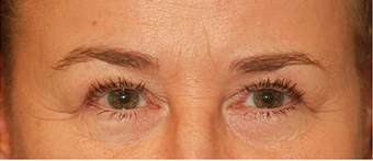 Eye Bag Surgery before 887169