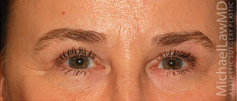 Eye Bag Surgery after 887169