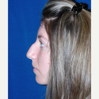 18-24 year old woman treated with Rhinoplasty before 3691953