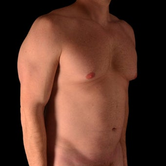 35-44 year old man treated with Vaser Liposuction before 1943516