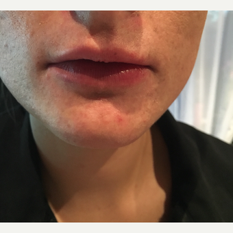 25-34 year old woman treated with Injectable Fillers after 3727172