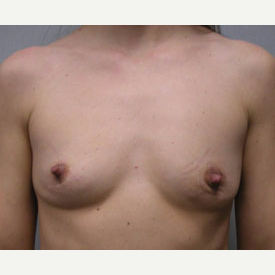 Breast Augmentation before 3683451