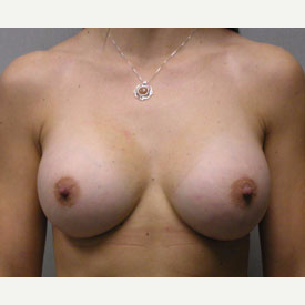 Breast Augmentation after 3683451