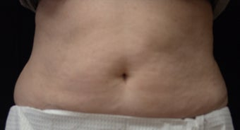 Coolsculpting after 495016