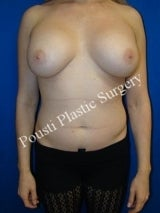 Saline Overfilled Breast Augmentation