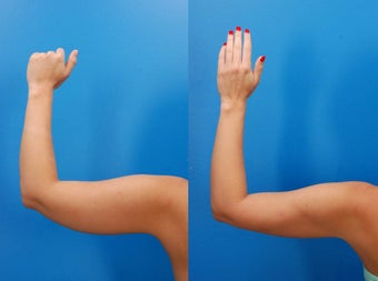 23 year old female before and after laser liposculpture of the arms