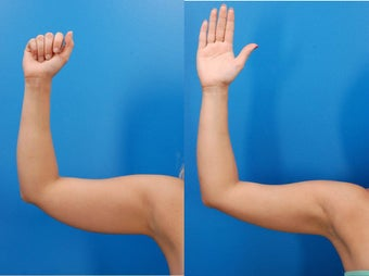 23 year old female before and after laser liposculpture of the arms 1401982