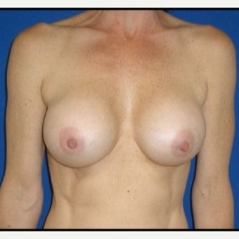 35-44 year old woman treated with Breast Implant Revision after 3408415