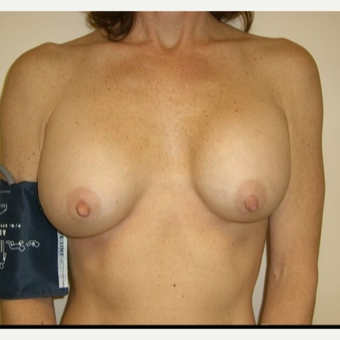 35-44 year old woman treated with Breast Implant Revision before 3408415
