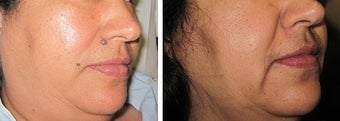 Mole Removal photos before 951878