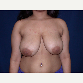 18-24 year old woman treated with Breast Lift before 3487933
