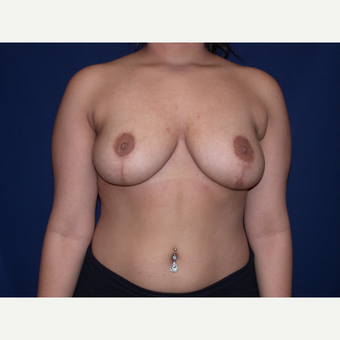 18-24 year old woman treated with Breast Lift after 3487933