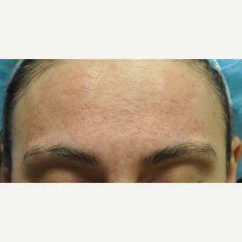 17 or under year old man treated with Acne Treatment with Laser Genesis after 3219653