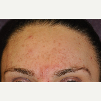 17 or under year old man treated with Acne Treatment with Laser Genesis before 3219653