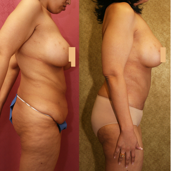 55-64 year old woman treated with Mommy Makeover after major weight loss after 3312109