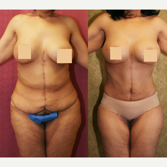 55-64 year old woman treated with Mommy Makeover after major weight loss before 3312109
