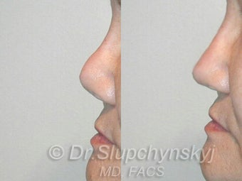 Asian Revision Rhinoplasty  Pollybeak Deformity