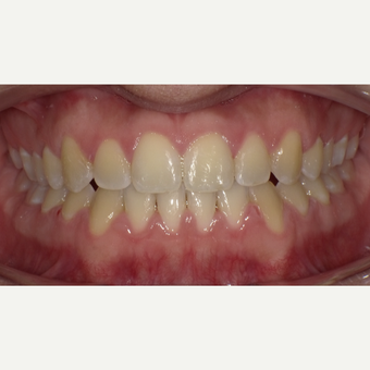 17 or under year old man treated with Braces after 3663391