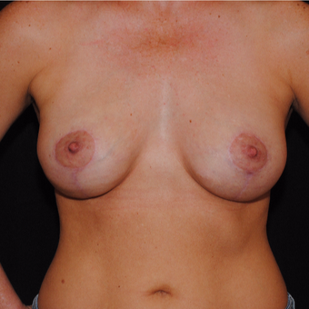 35-44 year old woman treated with Breast Lift with Implants after 3500437