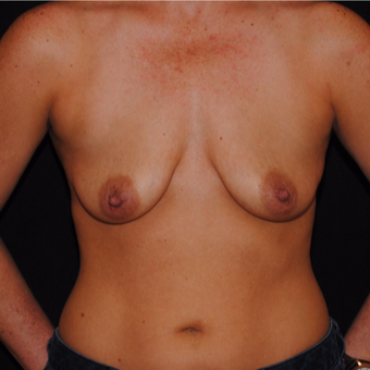 35-44 year old woman treated with Breast Lift with Implants before 3500437