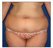 Tummy Tuck- Abdominoplasty before 372573