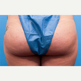 18-24 year old woman treated with Butt Lift after 3810429