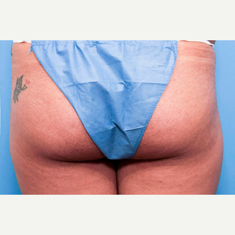 18-24 year old woman treated with Butt Lift before 3810429