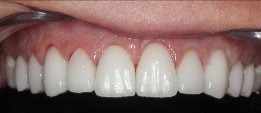 35-44 year old woman treated with Porcelain Veneers after 3241398